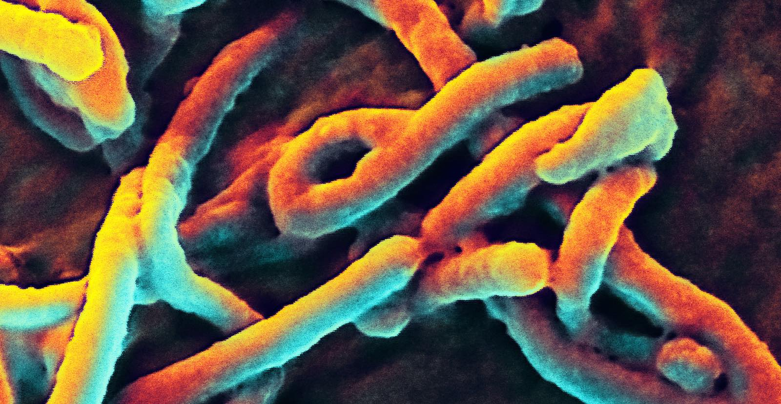Scanning of an electron micrograph of Ebola virus budding (Photo: NIAID/Flickr)